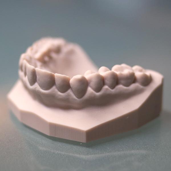 Dentalabdruck mit Asiga PlasPink gedruckt auf einem Asiga Freeform PRO